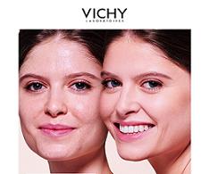 Brote de acné en la cara