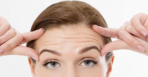 Cómo evitar las arrugas en la frente