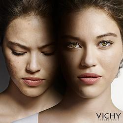 ¿Qué hacer ante un brote de acné?