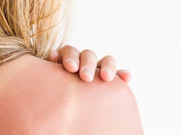 La radiación solar, el principal enemigo de nuestra piel