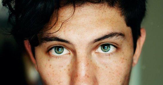 Evita el acné por estrés