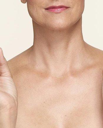 ¿Cuánto duran los sofocos de la menopausia?