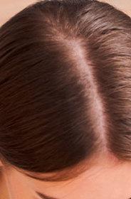 Las distintas causas de la caída del cabello